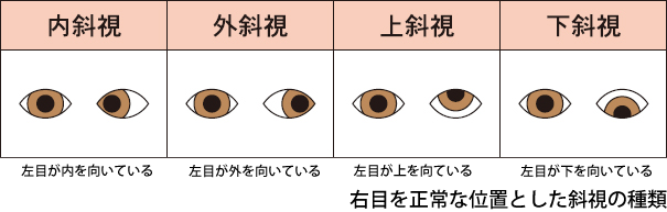 strabismus_01.png